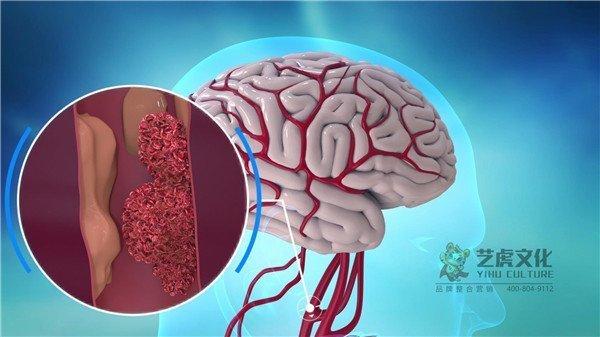 1大脑脑梗医疗医学高清晰视频[00_00_11][20210220-133752]