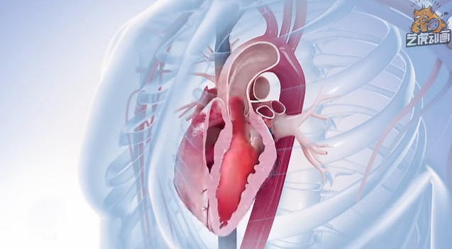 医学三维动画视频